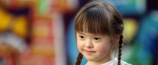Down Sendromu hastalık değil, genetik bir farklılıktır! (21 Mart Dünya Down Sendromu Günü)