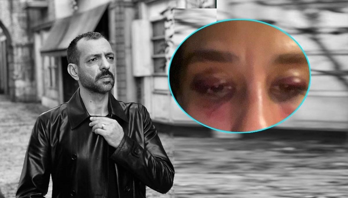 Rubato'nun solisti Özer Arkun: Cinsel taciz iddiası doğru değildir