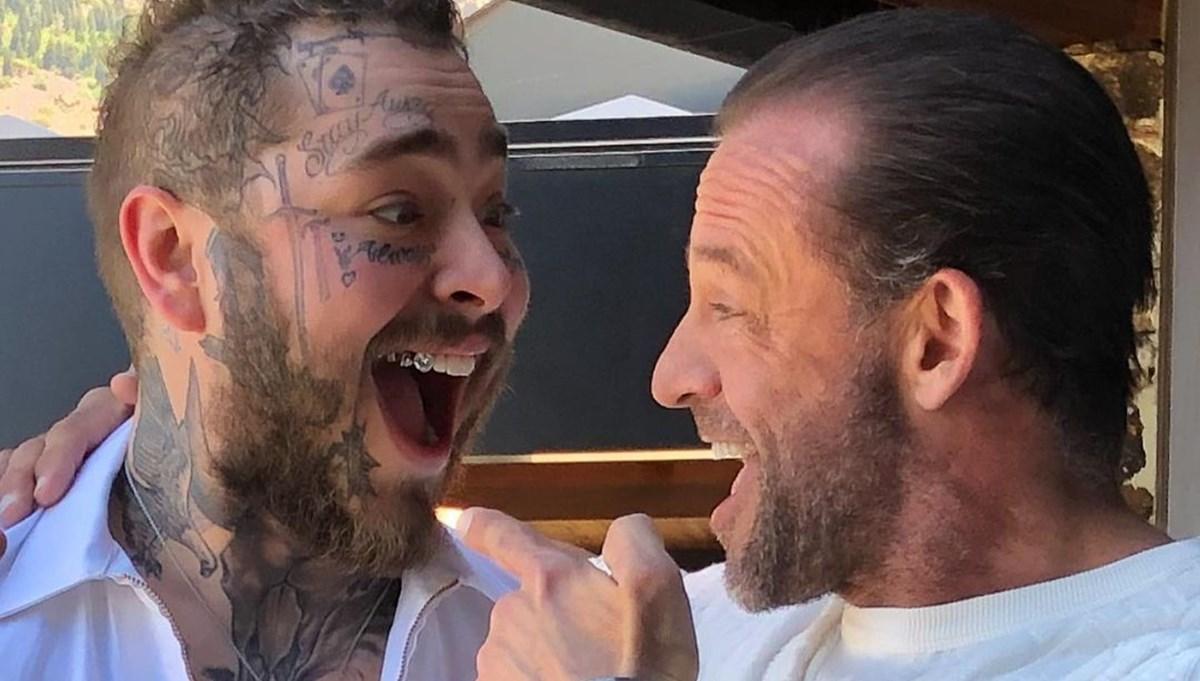 Post Malone'nin gülümsemesi 1,6 milyon dolar