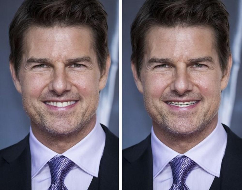 Bir dişin ünlülerin yüz ifadesini ne kadar değiştirebileceğini gösteren fotoğraflar - 14