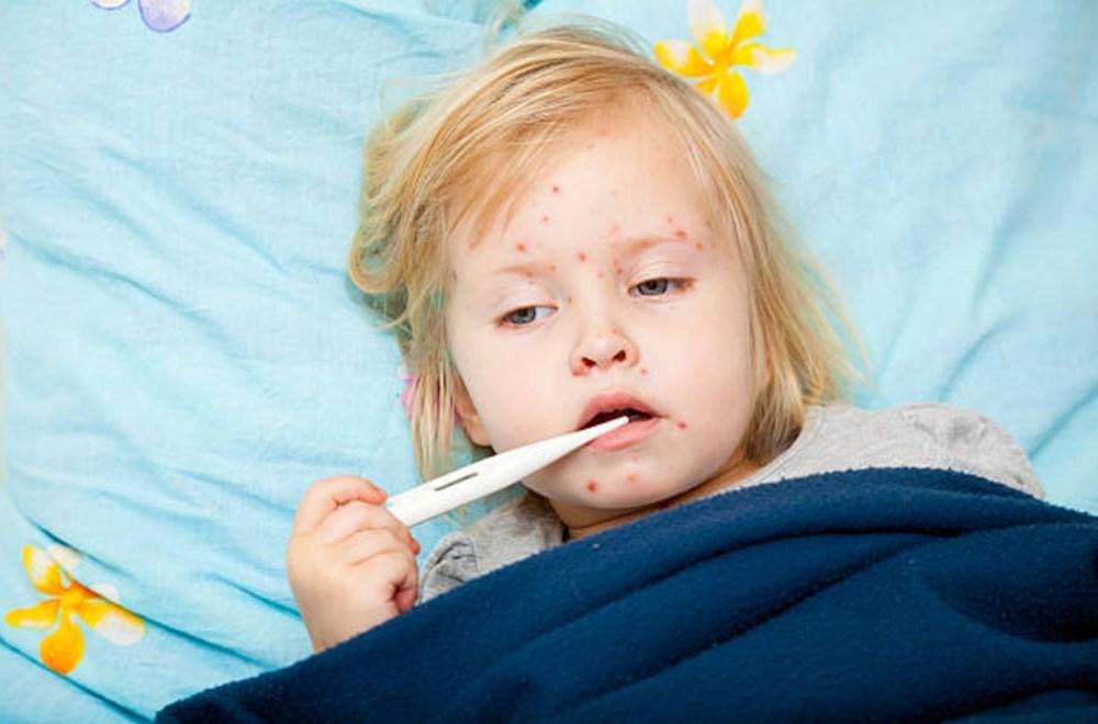 Çocuklarda görülen bulaşıcı hastalıklar nelerdir? (Kızamık, suçiçeği, kabakulak gibi hastalıklar ne kadar sürüyor?) - 3