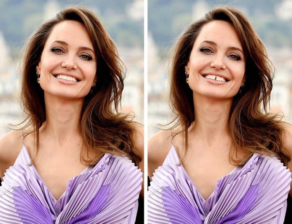 Bir dişin ünlülerin yüz ifadesini ne kadar değiştirebileceğini gösteren fotoğraflar - 2