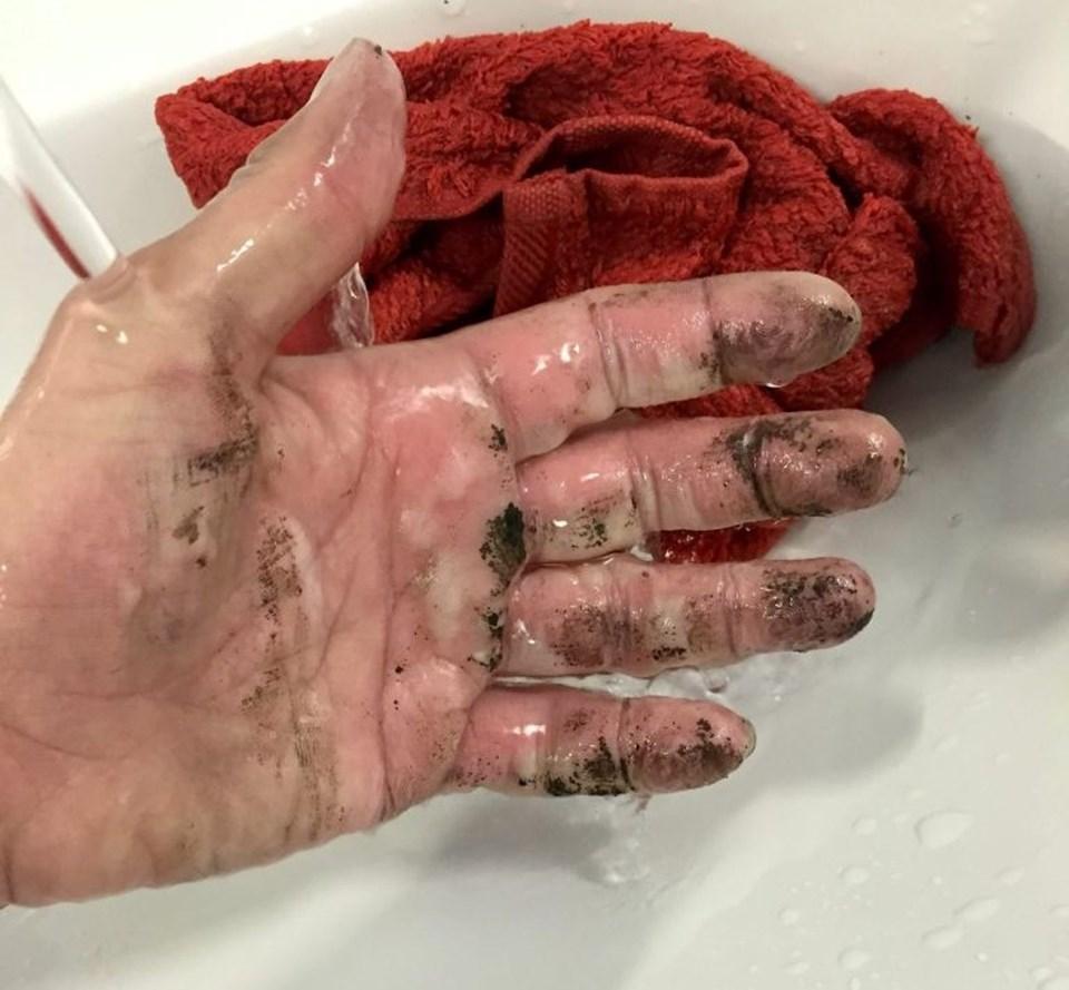 Çıkan yangının ardından eli yanan talihsiz öğrencinin sağlık durumunun iyi olduğu açıklandı.