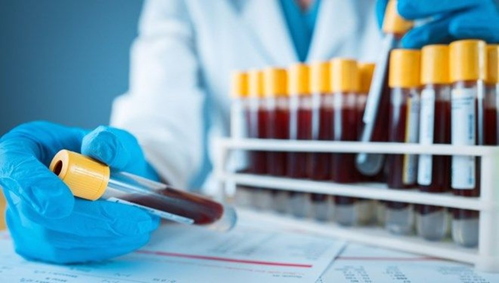 """Kan grubu """"0"""" olanlar corona virüse karşı daha avantajlı: İki yeni çalışma destekledi - 7"""