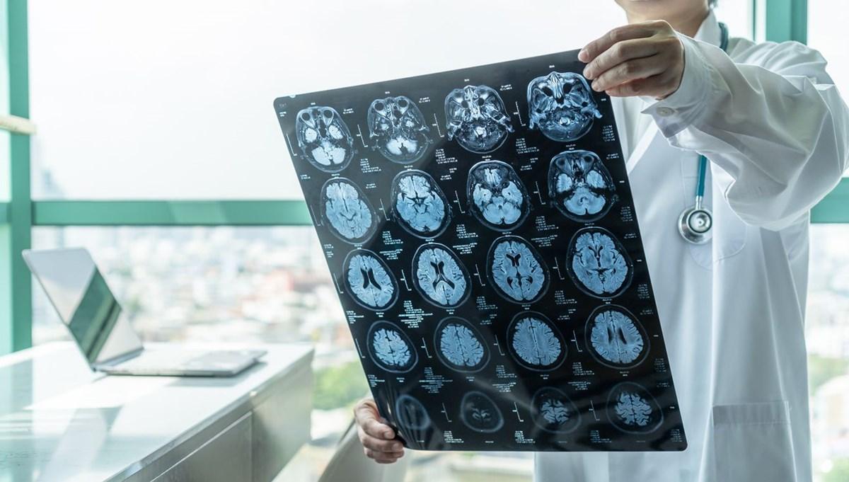 Covid-19 geçirenlerin beyninde küçülme tespit edildi