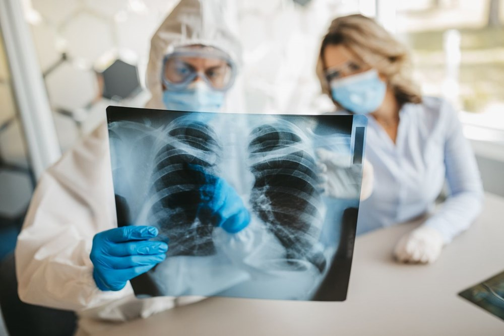 70 bini aşkın kişi incelendi: Covid-19'u ağır geçiren gençlerin yüzde 40'ında organ hasarı oluştu - 6