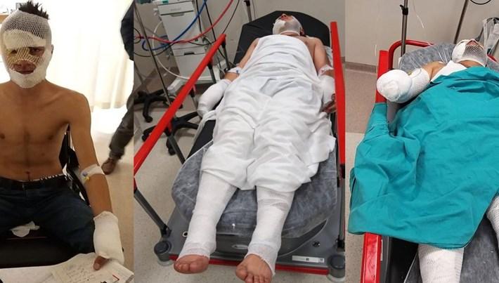 Adana'da acemi kundakçılar kendilerini yaktı
