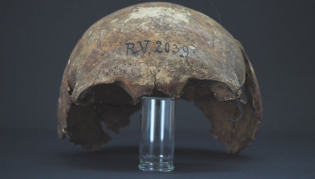Deadliest epidemic in human history: first patient found in 'Black Death'