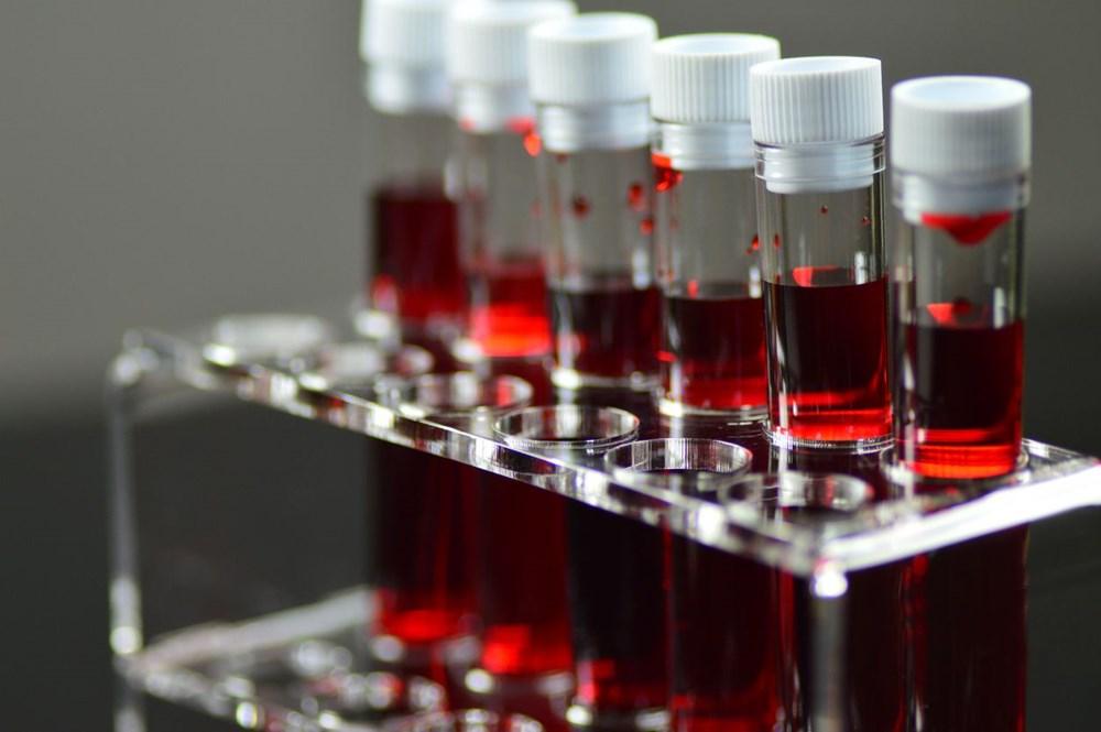 Araştırma: Kan grupları sağlığa dair ipuçları verebilir - 4