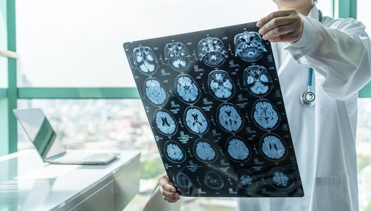 Harvardlı profesör, FDA'nın tartışmalı alzheimer ilacını onaylamasının ardından istifa etti: ABD tarihindeki en kötü kararlardan biri