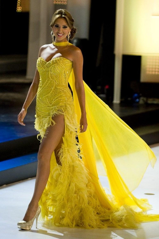Eski Kolombiya Güzeli  Daniella Alvarez'in bacağı kesildi - 7