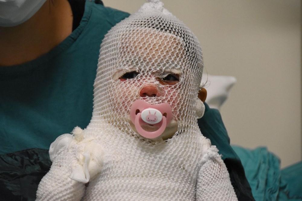 Beril bebekten iyi haber: Hayati tehlikesi yok - 4