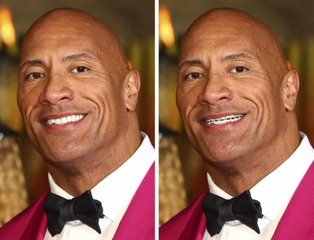 Bir dişin ünlülerin yüz ifadesini ne kadar değiştirebileceğini gösteren fotoğraflar - 3