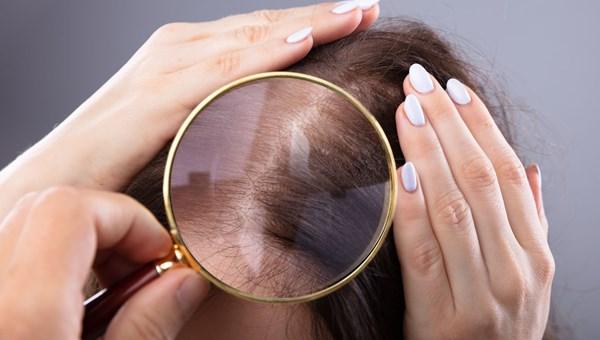 """""""Saç serumunun, birçok deri hastalığı üzerinde etkili olduğunu gördük"""""""