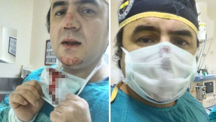 Osmaniye'de doktorun burnunu kıran saldırgan tutuklandı
