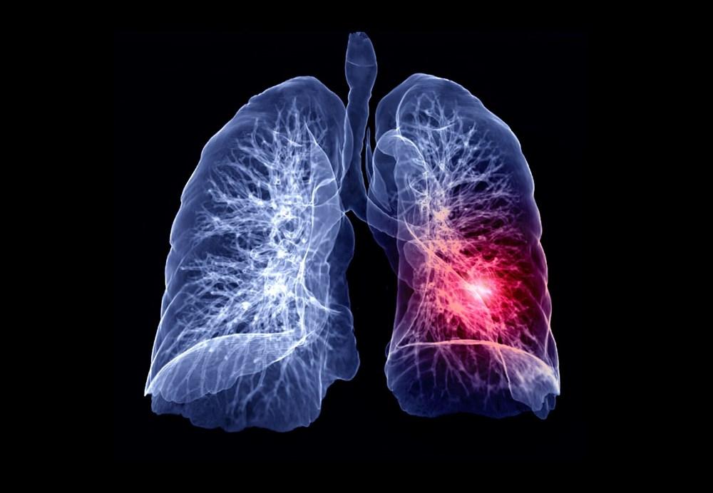 Corona virüsün akciğerlerde izlediği yol adım adım görüntülendi - 6
