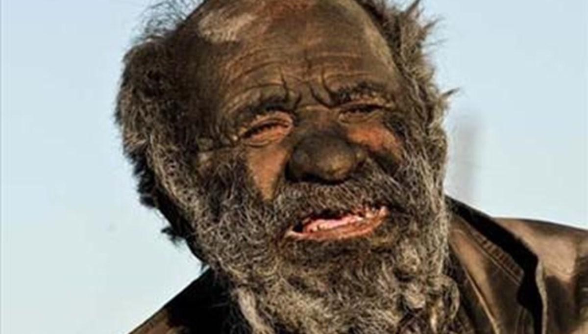 The man who hasn't washed for 65 years: Amoo Hadji