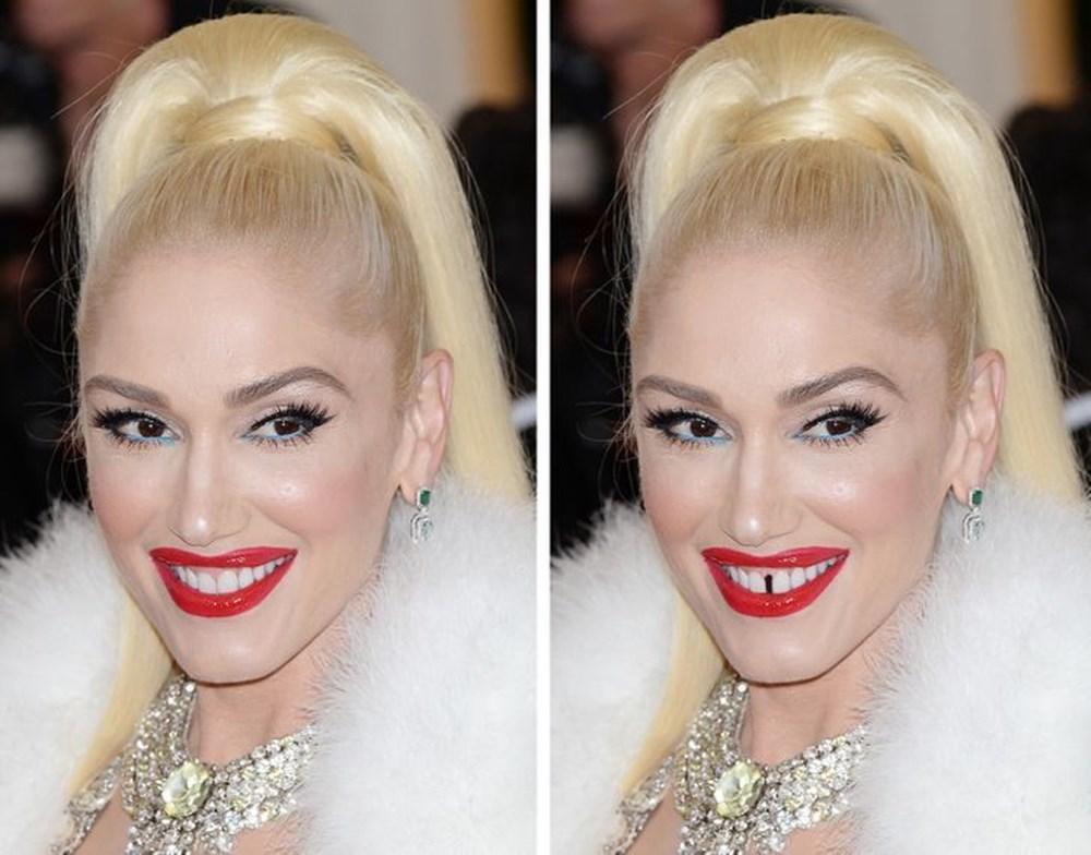 Bir dişin ünlülerin yüz ifadesini ne kadar değiştirebileceğini gösteren fotoğraflar - 15