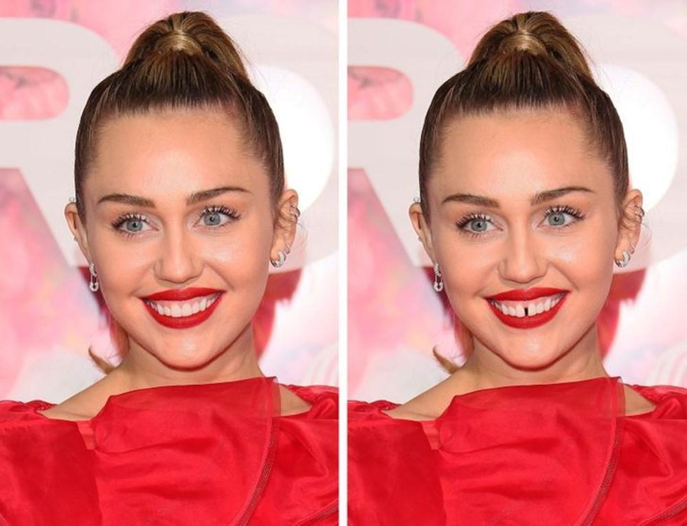 Bir dişin ünlülerin yüz ifadesini ne kadar değiştirebileceğini gösteren fotoğraflar - 7