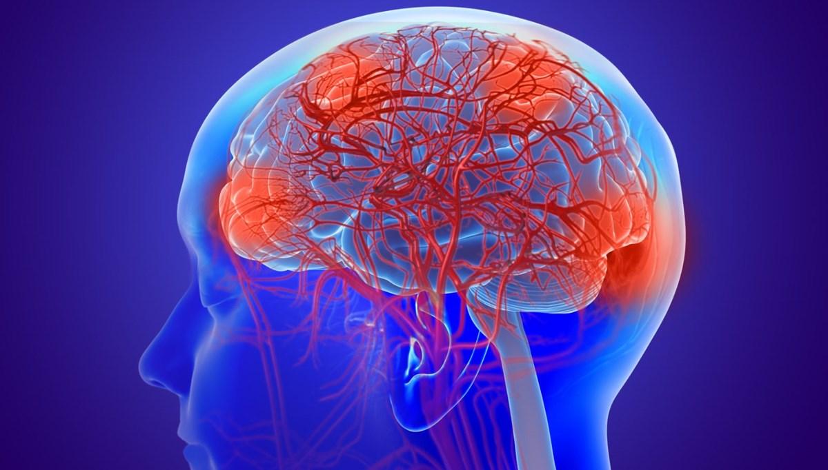 Kanada'da gizemli beyin hastalığı