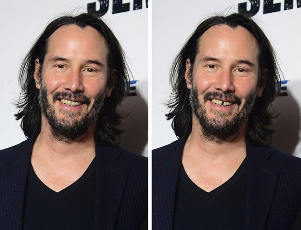 Bir dişin ünlülerin yüz ifadesini ne kadar değiştirebileceğini gösteren fotoğraflar - 1