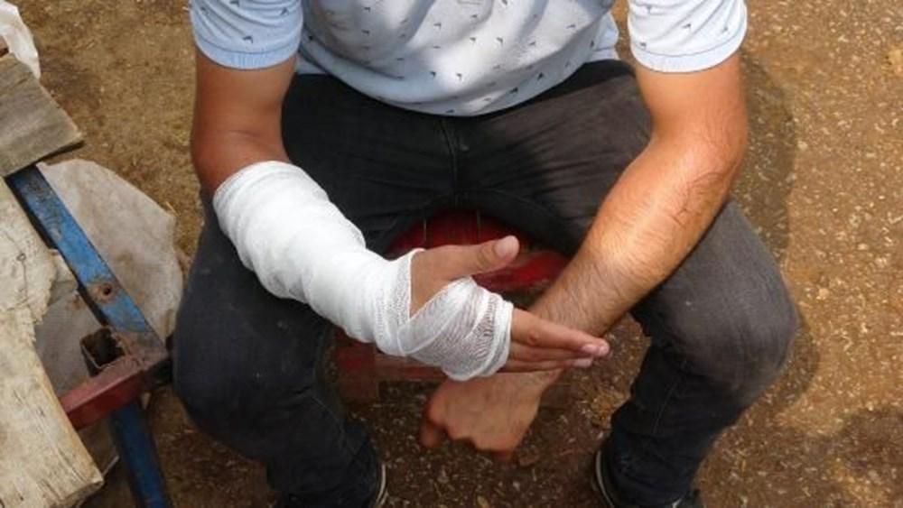 Kurban pazarlığı sırasında kolu çatladı - 3