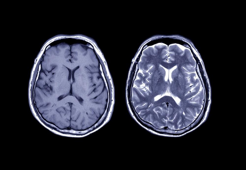 Sağlıklı beyin için 11 öneri - 7