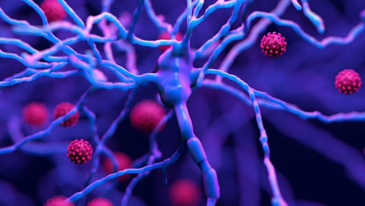 Araştırma: Hastanede yatan Covid hastalarının yüzde 80'i nörolojik semptom gösteriyor