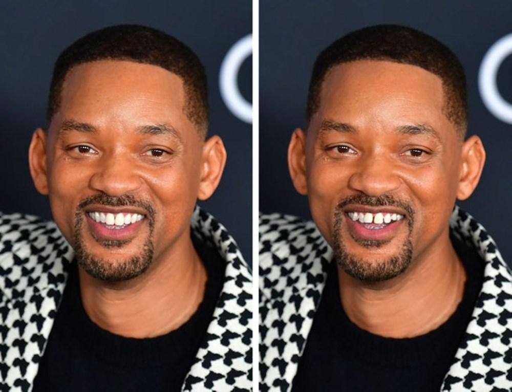 Bir dişin ünlülerin yüz ifadesini ne kadar değiştirebileceğini gösteren fotoğraflar - 6