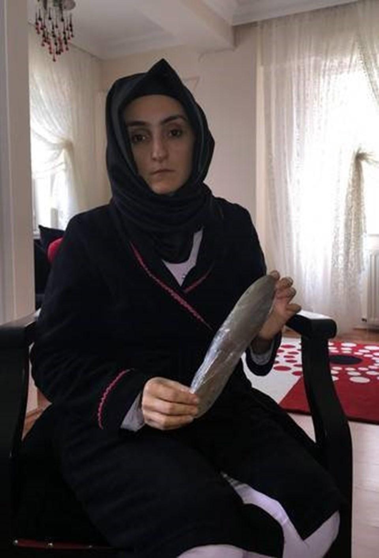 Fatma Soylu, doktorların karnında unuttuğu 30 cm'lik malayı gösterdi.