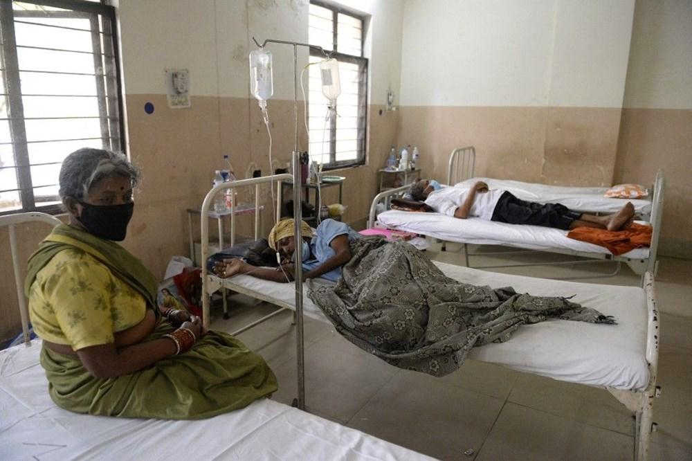 Hindistan'ı Covid-19'un ardından kara mantar vurdu: Doktorlar binlerce kişinin gözünü çıkardı - 6