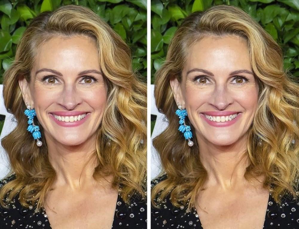 Bir dişin ünlülerin yüz ifadesini ne kadar değiştirebileceğini gösteren fotoğraflar - 11