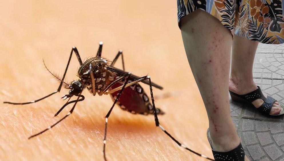Karadeniz için Asya Kaplan Sivrisineği uyarısı