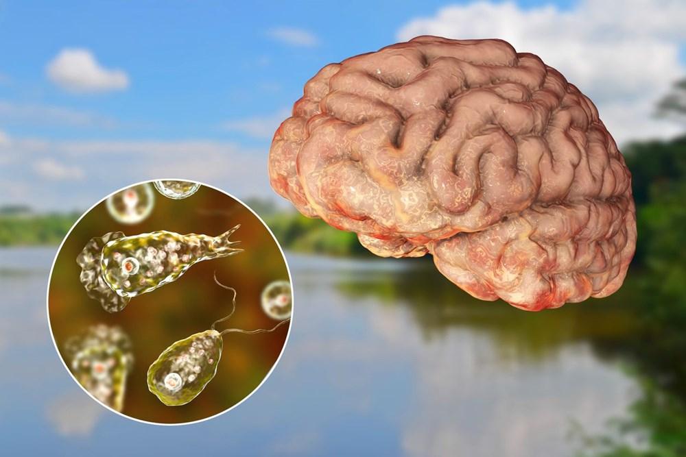 ABD'de bir çocuk beyin yiyen amip nedeniyle hayatını kaybetti - 5