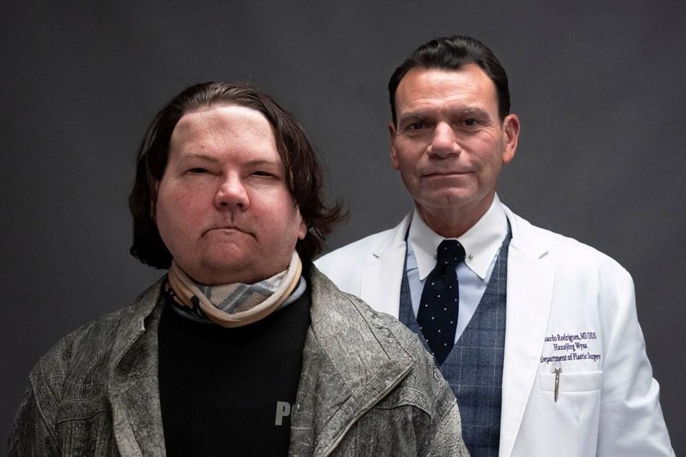 Dünyanın ilk başarılı eş zamanlı yüz ve çift el nakli operasyonu: Umut her zaman var, inancınızı kaybetmeyin - 4