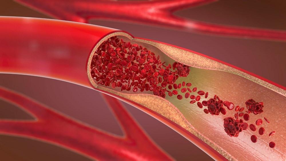 Corona virüs ile kan grupları arasında nasıl bir ilişki var? - 9