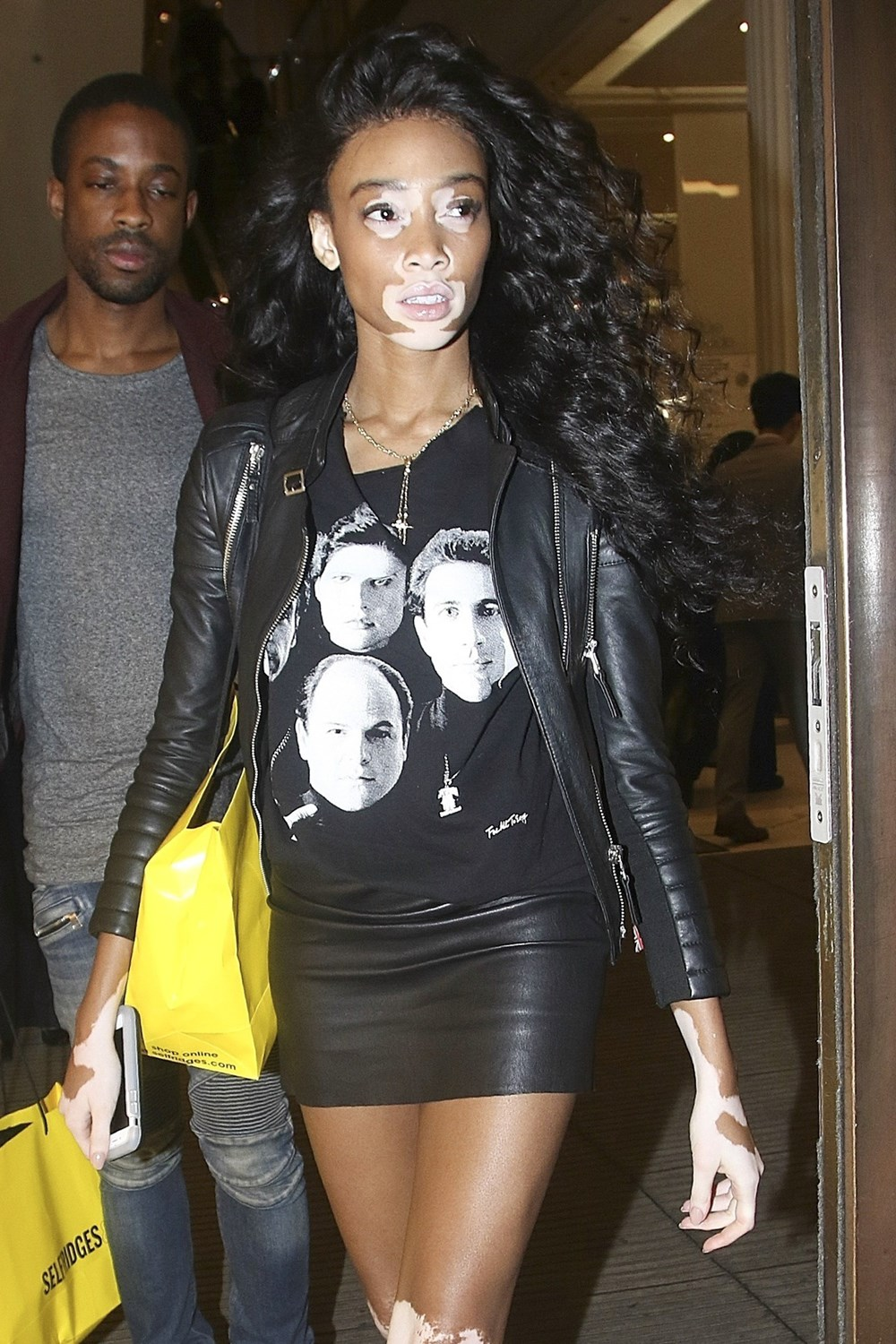Winnie Harlow: Canadian Model With Rare Skin Condition