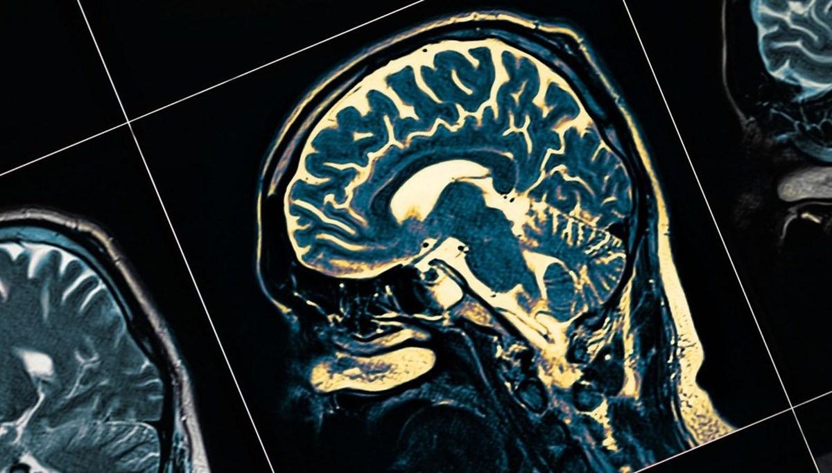 ABD'den 18 yıl sonra bir Alzheimer ilacına onay
