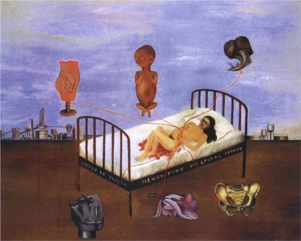 Frida Kahlo kimdir? (Tahta Bacak Frida Kahlo'nun hayatı) - 10