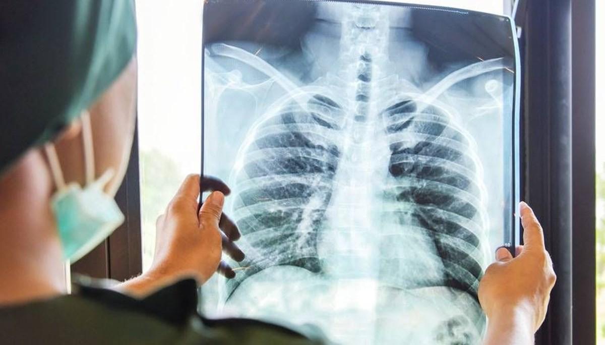 Sigara içenlerin Covid-19'a daha az yakalandığını öne süren bilim insanlarının tütün endüstrisinden para aldığı ortaya çıktı