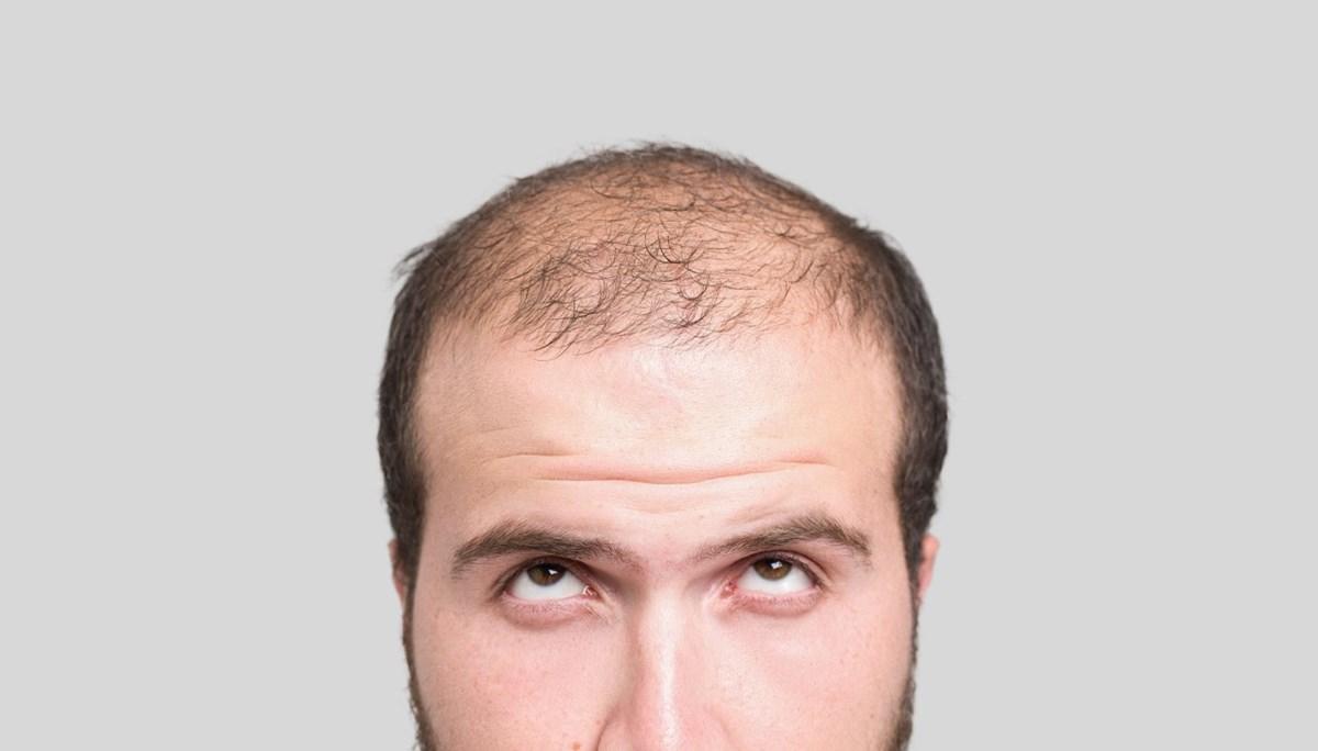 Covid-19 saç döküyor