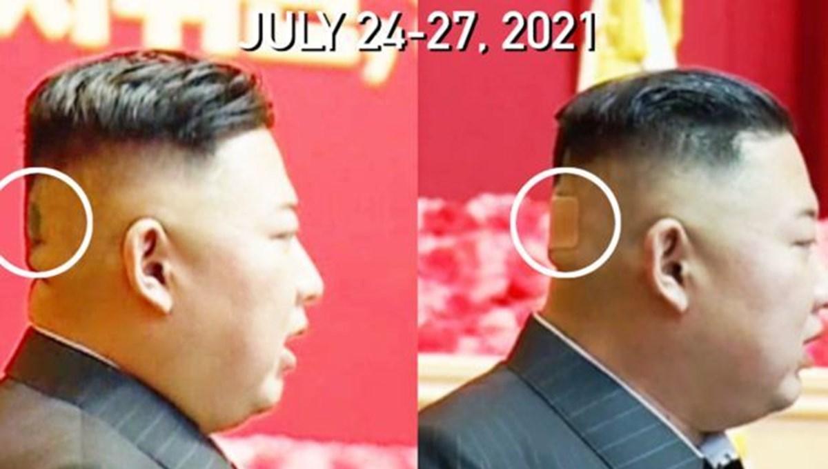 Kuzey Kore lideri Kim Jong-un başının arkasında büyük bir bandajla ortaya çıktı: Sağlığı hakkındaki tarışmalar arttı
