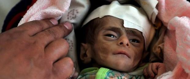yemen-bm-unicef-çocuk181115.jpg
