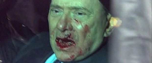 Berlusconi ameliyat oldu