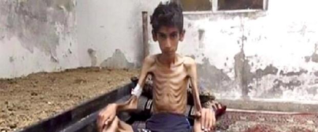 bm medaya açlık bm insani yardım080116.jpg