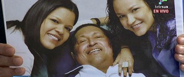 Chavez'in son durumu