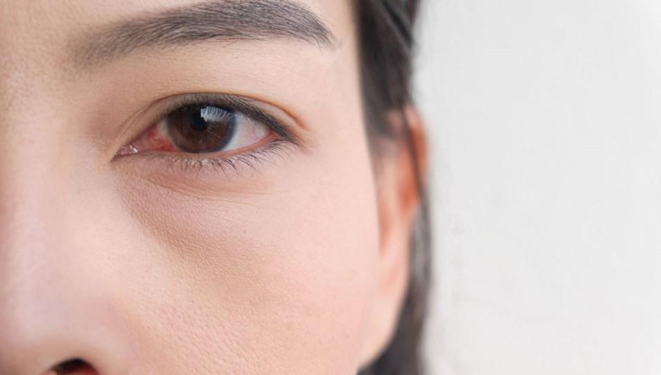 'Kırmızı göz' corona virüs belirtisi olabilir