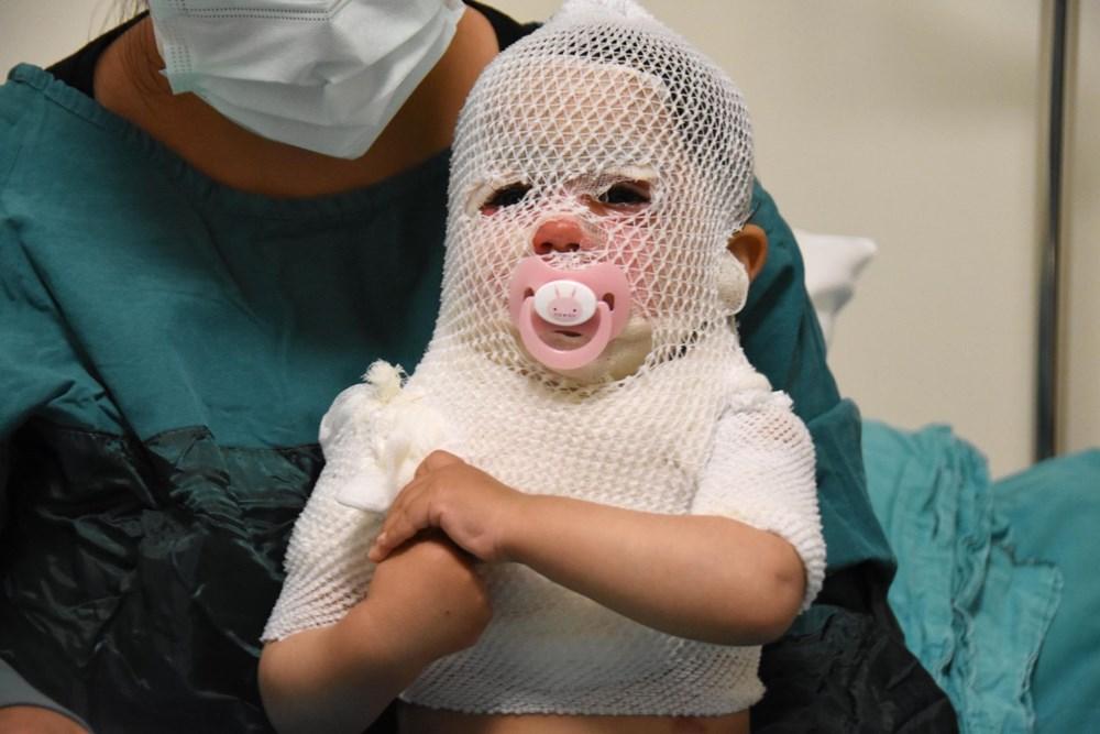 Beril bebekten iyi haber: Hayati tehlikesi yok - 7