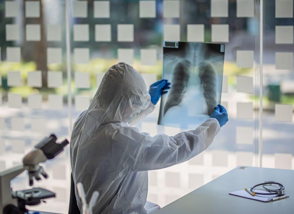 Corona virüs havada daha iyi yayılmak için evrim geçirdi: Bilim insanlarından korkutan uyarı - 14