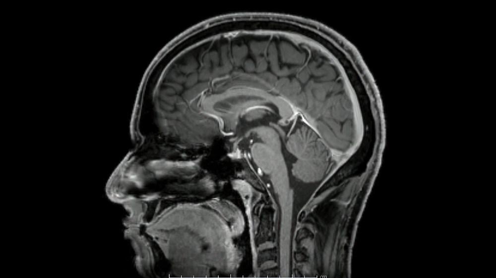 Sağlıklı beyin için 11 öneri - 16